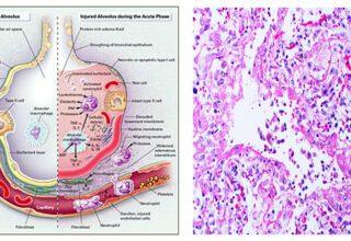Yaygın Alveolar Hasar (DAD) Hastalığı Nedir?