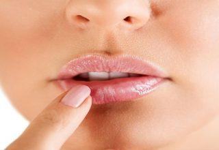 Herpes Nedir? Herpes Nasıl Tedavi Edilir?