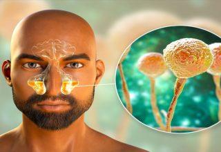 Kara Mantar Hastalığı Nedir? Kara Mantar Hastalığı Belirtileri Nelerdir?